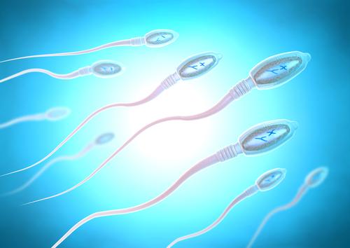 Spermiogram